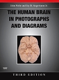 Evolve Resources for The Human Brain in Photographs and Diagrams, 3rd Edition
