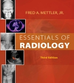 cover image - Essentials of Radiology - Elsevier eBook on VitalSource,3rd Edition