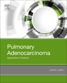 Pulmonary Adenocarcinoma: Approaches to Treatment