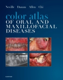 cover image - Color Atlas of Oral and Maxillofacial Diseases Elsevier eBook on VitalSource