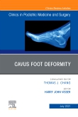 Cavus Foot Deformity, An Issue of Clinics in Podiatric Medicine and Surgery
