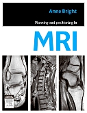 Evolve Resources for Planning and Positioning in MRI