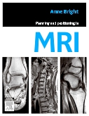 Planning and Positioning in MRI - E-Book