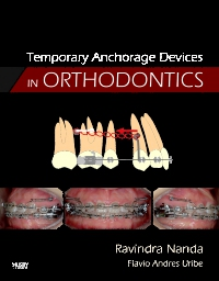 cover image - Temporary Anchorage Devices in Orthodontics