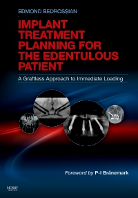 cover image - Implant Treatment Planning for the Edentulous Patient - Elsevier eBook on VitalSource