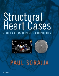 cover image - Evolve Resources for Structural Heart Cases