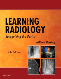 cover image - Learning Radiology Elsevier eBook on VitalSource,4th Edition