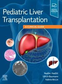 cover image - Pediatric Liver Transplantation