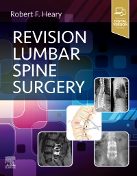 cover image - Revision Lumbar Spine Surgery