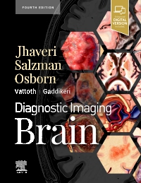 cover image - Diagnostic Imaging: Brain,4th Edition