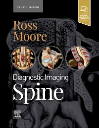 cover image - Diagnostic Imaging: Spine,4th Edition