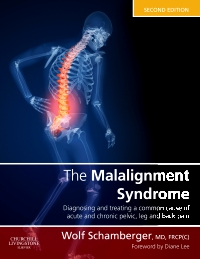 cover image - The Malalignment Syndrome,2nd Edition