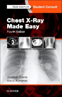 cover image - Chest X-Ray Made Easy,4th Edition