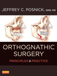 cover image - Orthognathic Surgery - 2 Volume Set