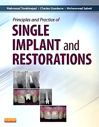 cover image - Principles and Practice of Single Implant and Restorations - Elsevier eBook on VitalSource