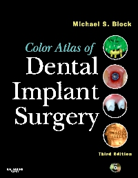 cover image - Color Atlas of Dental Implant Surgery - Elsevier eBook on VitalSource,3rd Edition